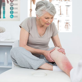 A woman with cellulitis holding her leg while on the medical examination table.