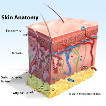 Illustration cross-section of the skin and where cellulitis occurs.