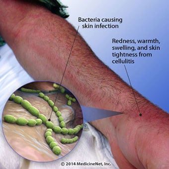 This illustration shows the signs and symptoms of cellulitis.