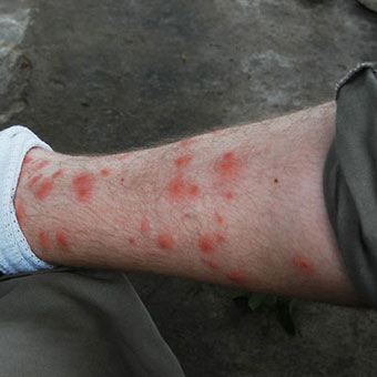 Chigger Bites On Dogs Belly