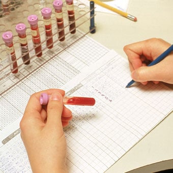 Laboratory complete blood count (CBC) test results being recorded.