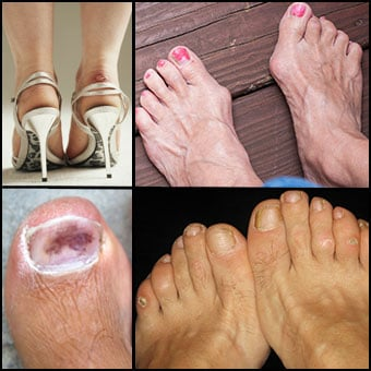 Bruises, bunions, corns and blisters are common causes of foot pain as shown here.