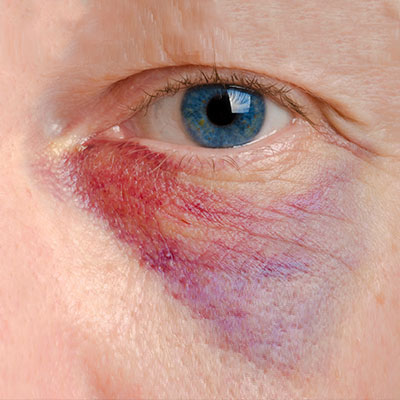 A man with a hematoma below the eye.