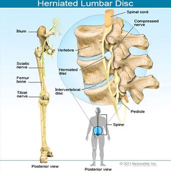 Illustration of herniated lumbar disc.