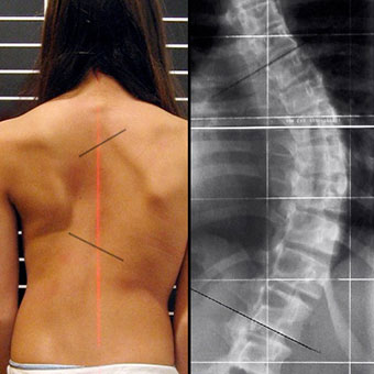 A female with scoliosis shows curvature of the spine.