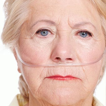 A senior woman with lung cancer wears breathing tubes for oxygen.