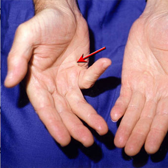 Arrow shows a fifth digit joint contracture on the small finger of the right hand.