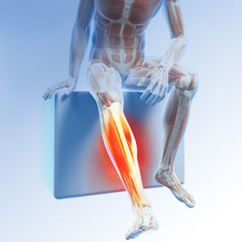 A illustration portraying leg pain caused by restless leg syndrome (RLS).