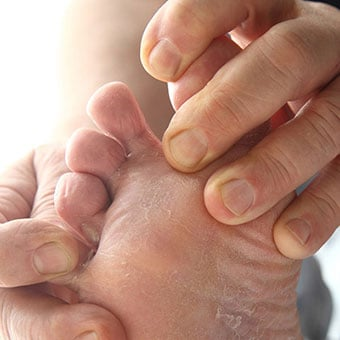 A person examines in between toes for skin fungi.