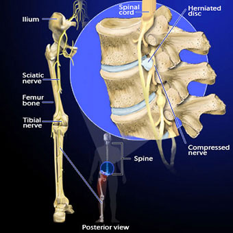 Illustration of sciatica caused by disc herniation.