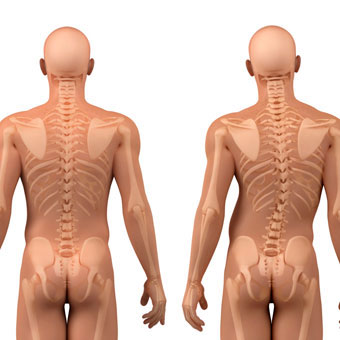 Illustration showing healthy spine (left) and scoliosis spine curvature (right).
