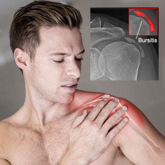 A man with shoulder pain and shoulder X-ray showing bursitis.