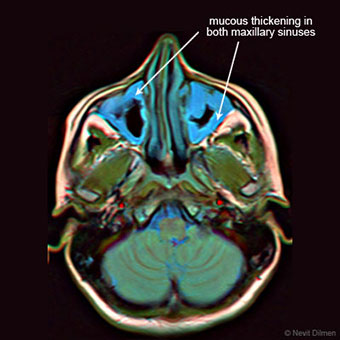 False color brain MRI showing mucosal thickening in both maxillary sinuses.