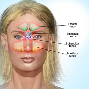 Natural Treatment For Bad Chronic Sinus Infection