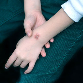 A wound on a child's arm.