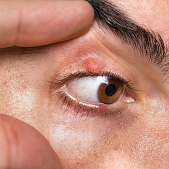 A man has a sty on his upper and lower eyelid.