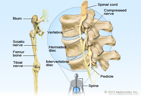 Slipped Disc Illustration