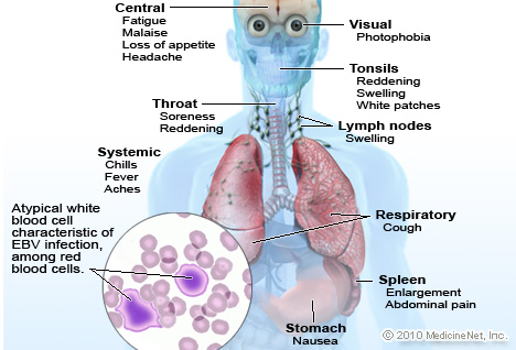 Infectious Mononucleosis Illustration