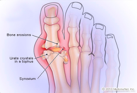 Picture of Gout
