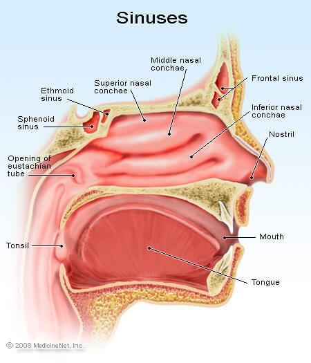 Picture of the sinus cavities.