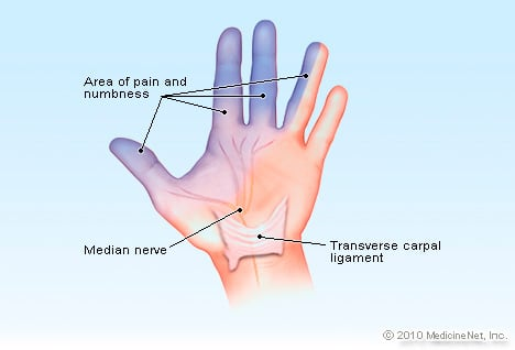 Carpal Tunnel Syndrome Illustration