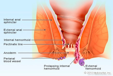 Hemorrhoid Illustration