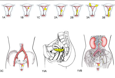 Uterine Cancer PIcture