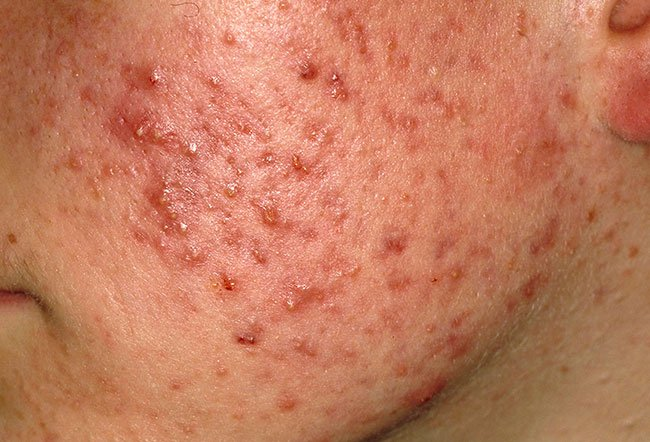 Picture of Acne Vulgaris Nodulocystic