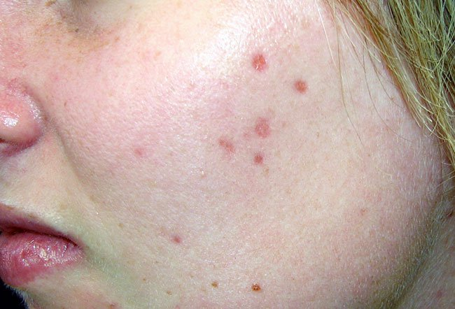Picture of Erythematous Deep Acne Scars.