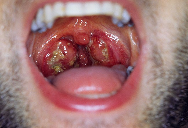 Picture of Infectious Mononucleosis