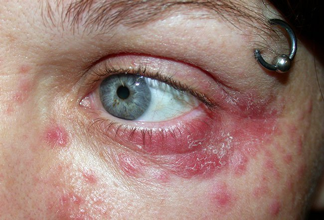 Picture of Periorbital Dermatitis