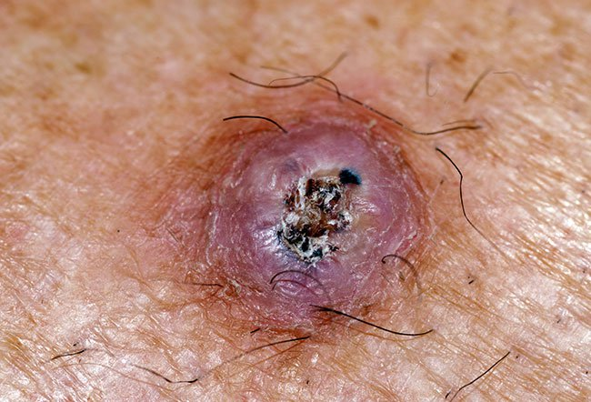 Picture of Squamous Cell Carcinoma with Central Hyperkeratosis