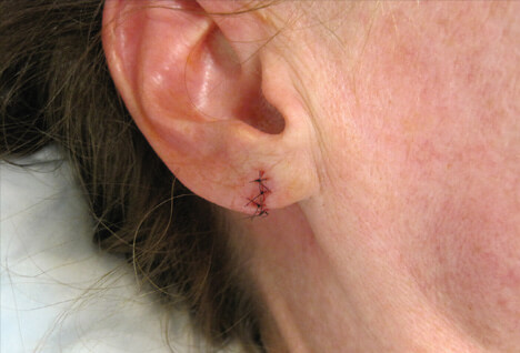Picture of Torn Earlobe Surgery