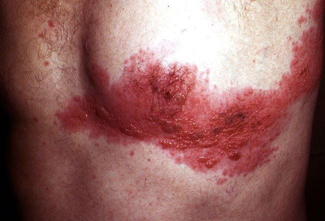 Picture of Varicella-Zoster Virus Infection on Chest Wall  