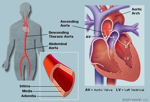 Picture of Aorta