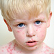 Take the Chickenpox Quiz!