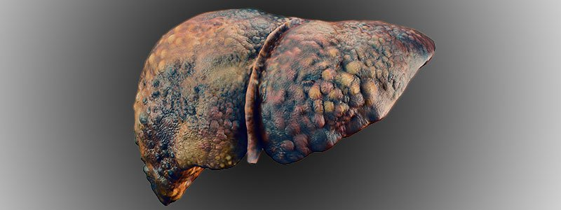 Image of a damaged human liver.