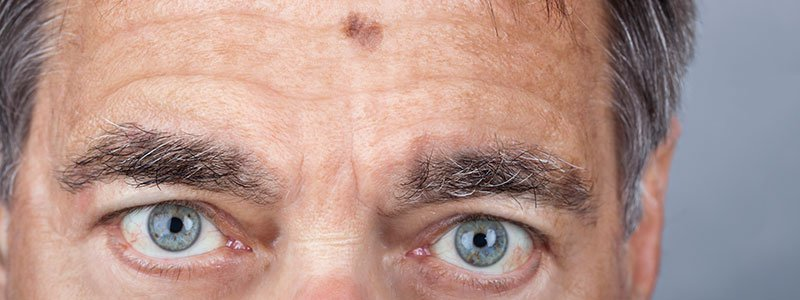 A man with melanoma mole on his forehead.