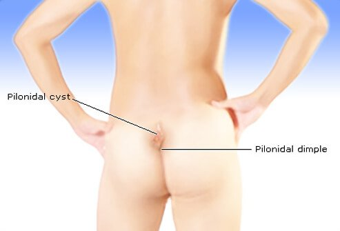 Picture of Pilonidal Cyst