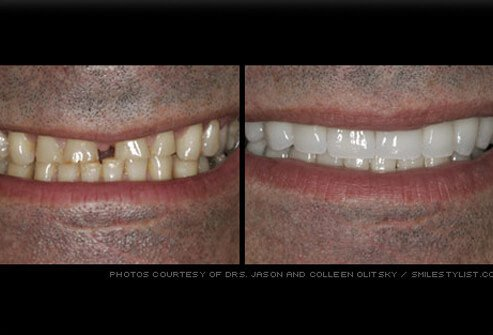 Picture of Veneers