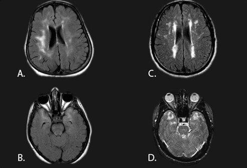 Picture of Vascular (Multi-Infarct) Dementia