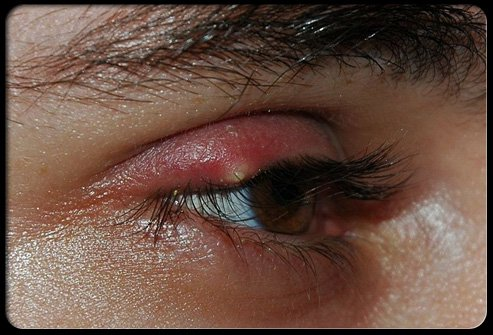 Picture of Sty (Stye)