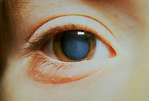 Picture of Cataracts