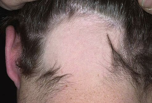 Picture Of Alopecia Areata Picture Image On Rxlist Com