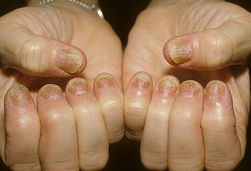 Do you have foot & hand psoriasis symptoms and need treatment 2