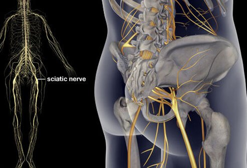 Picture of Sciatica