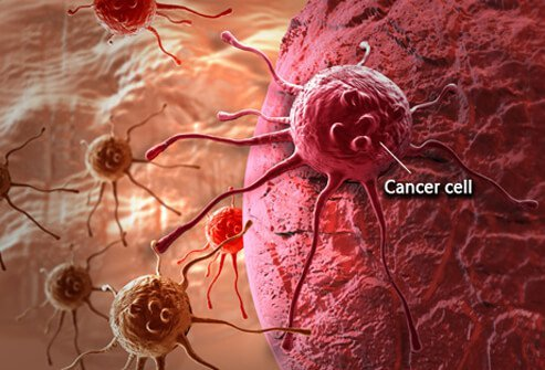 Understanding Cancer: Metastasis, Stages of Cancer, and More