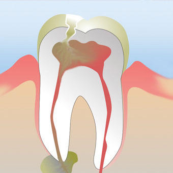 An abscessed tooth can occur when infection spreads beyond the root of a tooth.