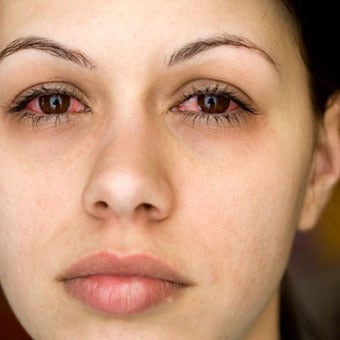 A woman with red eyes suffers from pinkeye (conjunctivitis) due to allergies.