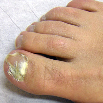 A complication of athlete's foot is fungal nail infection (onychomycosis).